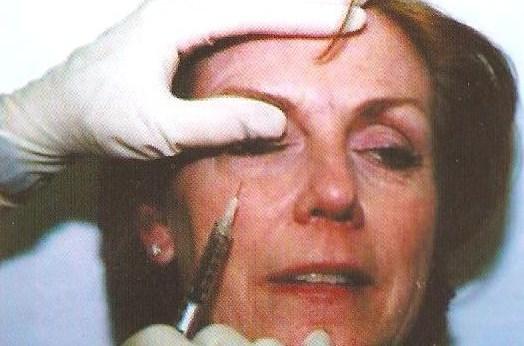 mesotherapeia 2